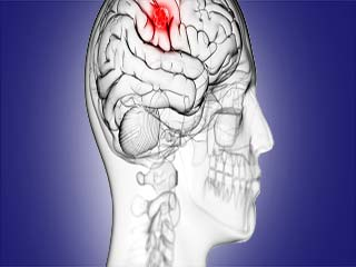 What is <strong>brain</strong> tumour?
