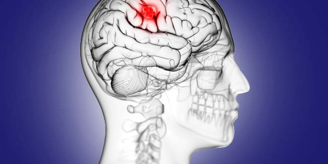 What is brain tumour?