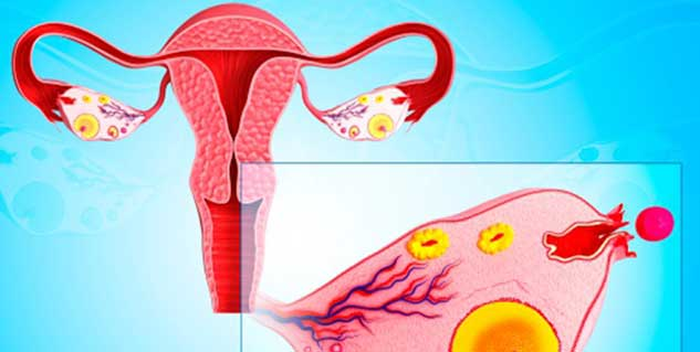 Cancer of fallopian tubes in hindi