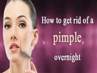 How to <strong>get</strong> <strong>rid</strong> of a pimple overnight