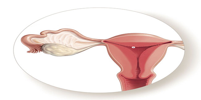 Successful womb implant raises hope for infertile women