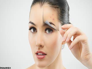 Ways to use Vitamin-E oil for <strong>reducing</strong> acne scars