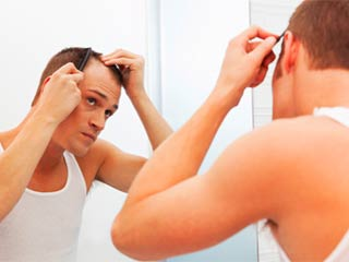 Common misconceptions about male <strong>baldness</strong>