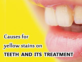 Causes for yellow stains on teeth and its <strong>treatment</strong>