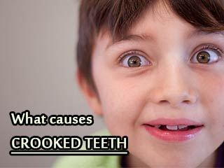What causes crooked <strong>teeth</strong>