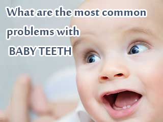 What are the most common <strong>problems</strong> with baby teeth