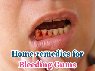 <strong>Home</strong> <strong>remedies</strong> for <strong>bleeding</strong> <strong>gums</strong>