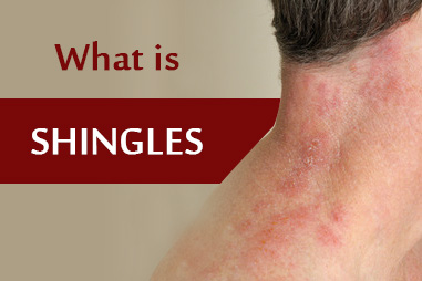 What is shingles