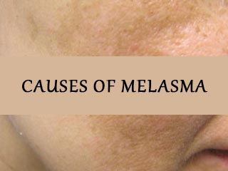<strong>Causes</strong> of melasma