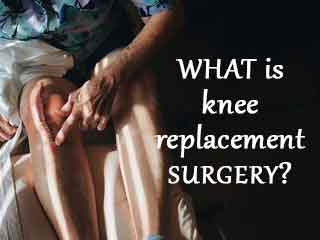 <strong>What</strong> is knee replacement surgery?