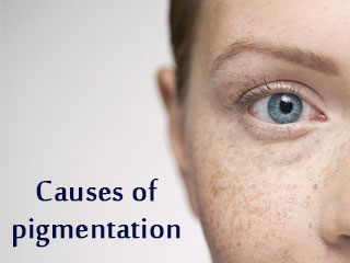 <strong>Causes</strong> of pigmentation