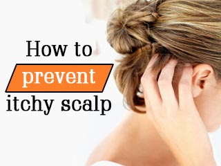 How to <strong>prevent</strong> itchy scalp