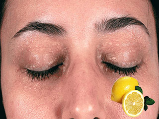 Get rid of those ugly bumps around your eyes with these natural remedies