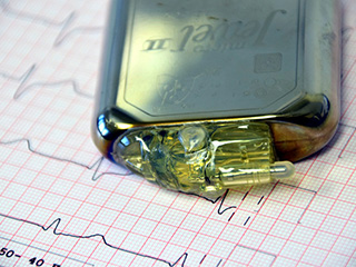 How do pacemakers <strong>work</strong>?