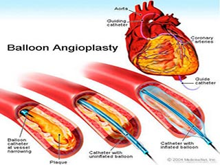 How is Angioplasty Done