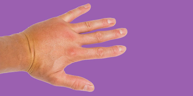 Wave goodbye to swollen hands in the morning by learning its causes and treatment