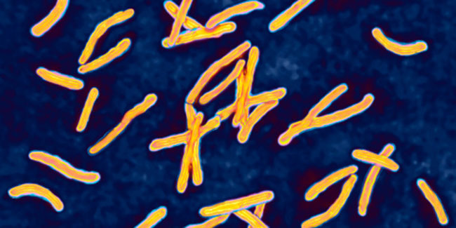 Drugs to treat multi resistant TB is not easily accessible