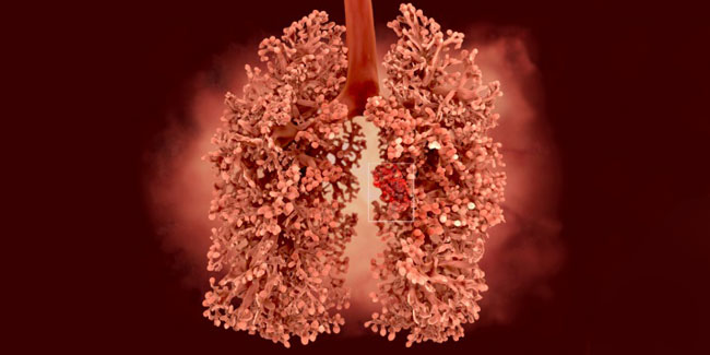 5 Lung cancer symptoms you should be aware of even if you don't smoke