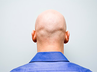 <strong>Home</strong> remedies for hair loss in men
