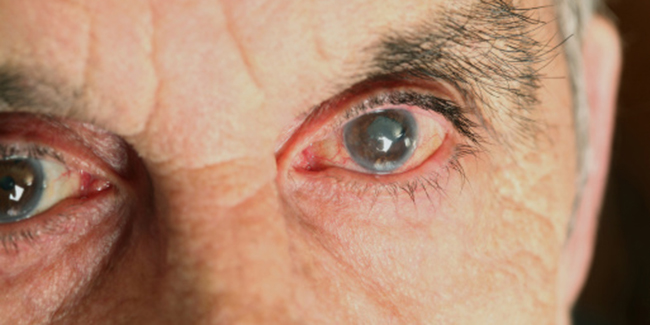 Adding vitamin B3 to your water could boost eye health and help to prevent glaucoma, study finds