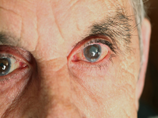 Adding vitamin B3 to your water could boost <strong>eye</strong> health and help to prevent glaucoma, study finds
