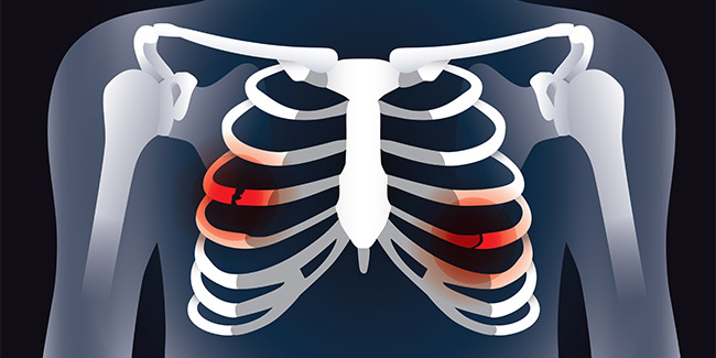 Costochondritis is a chest pain not a heart problem