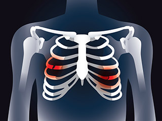 Costochondritis is a chest pain not a heart <strong>problem</strong>