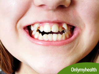 How Crooked Teeth Can <strong>Impact</strong> Your Dental and Overall Health
