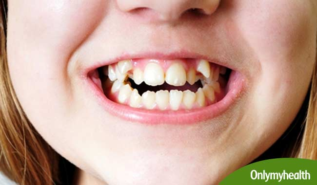 How Crooked Teeth Can Impact Your Dental and Overall Health