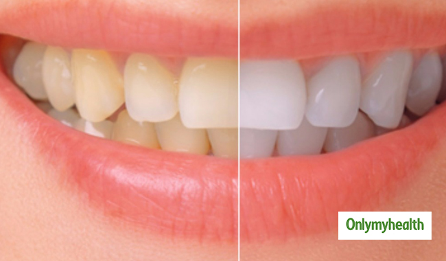 What Causes Teeth to Discolour