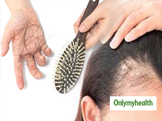 Best Home Remedies to Prevent Hair Loss in Women