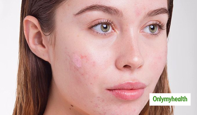 Here Is What Your Acne Tells About Your Health