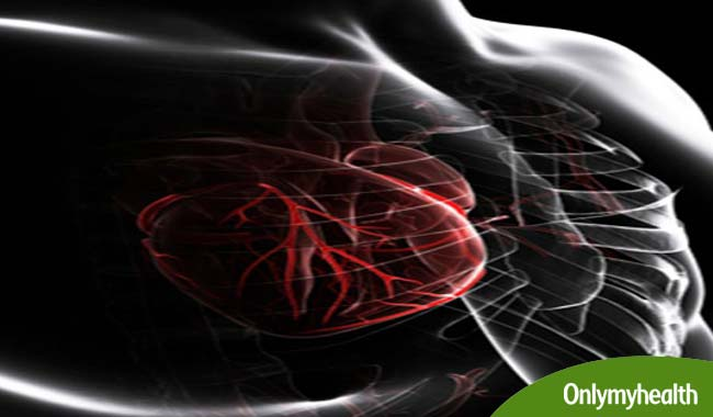 What is Nuclear Heart Scan also Known as?