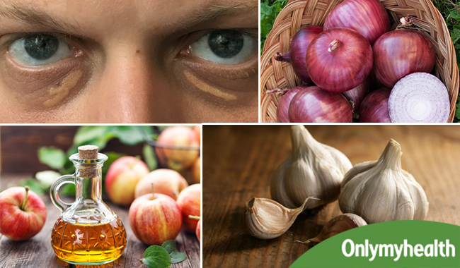 Home Remedies For Cholesterol Deposits Around Your Eyes In