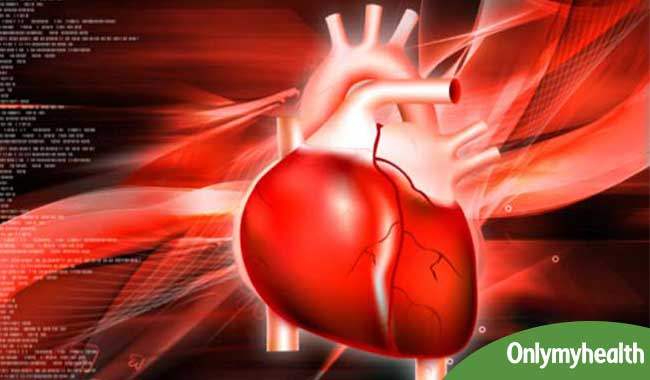 What is Coronary Artery Bypass Grafting?