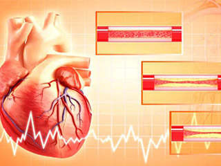 Angioplasty: When Must One Seek Medical Advice?