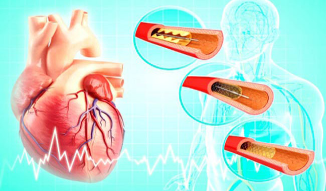 Risks of Angioplasty
