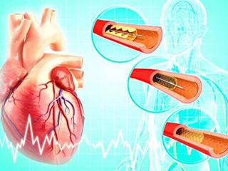 Risks of Angioplasty?