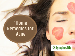 Looking for Natural Cure for <strong>Acne</strong> Problem? Try these Effective Home <strong>Remedies</strong>