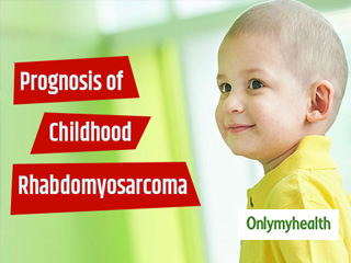 What is the Prognosis of Childhood Rhabdomyosarcoma?