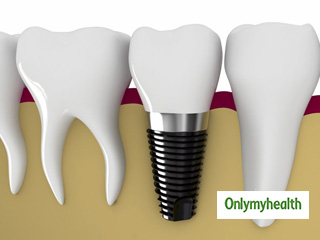 <strong>Problems</strong> with Tooth Implants