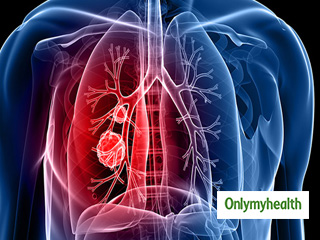 Benefits of Eating Fruits for Lung Cancer Patients