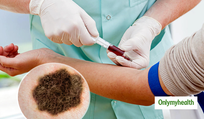 A Blood Test Might Detect Melanoma Skin Cancer Study