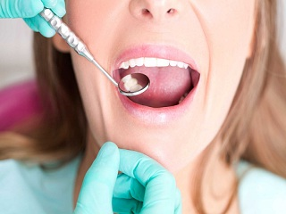 The Reason Why Early Diagnosis of Tooth Decay is Important