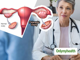 What is the Treatment for Polycystic Ovary Syndrome