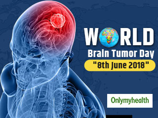 What is <strong>Brain</strong> <strong>Tumor</strong>? Know the Symptoms, Diagnosis and Treatment