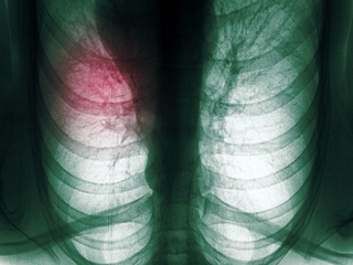 Worried you may have Lung Cancer? Just Take more <strong>Vitamin</strong> E