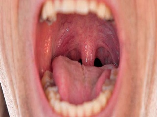 Burning <strong>Mouth</strong> <strong>Syndrome</strong>
