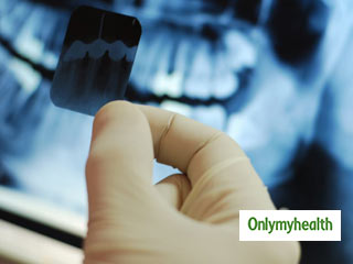 How often should you get your teeth X-rayed