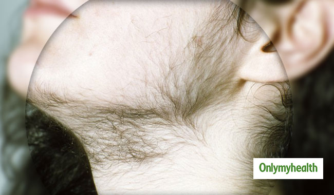 Ayurvedic Remedies to Control Excess Body Hair Growth